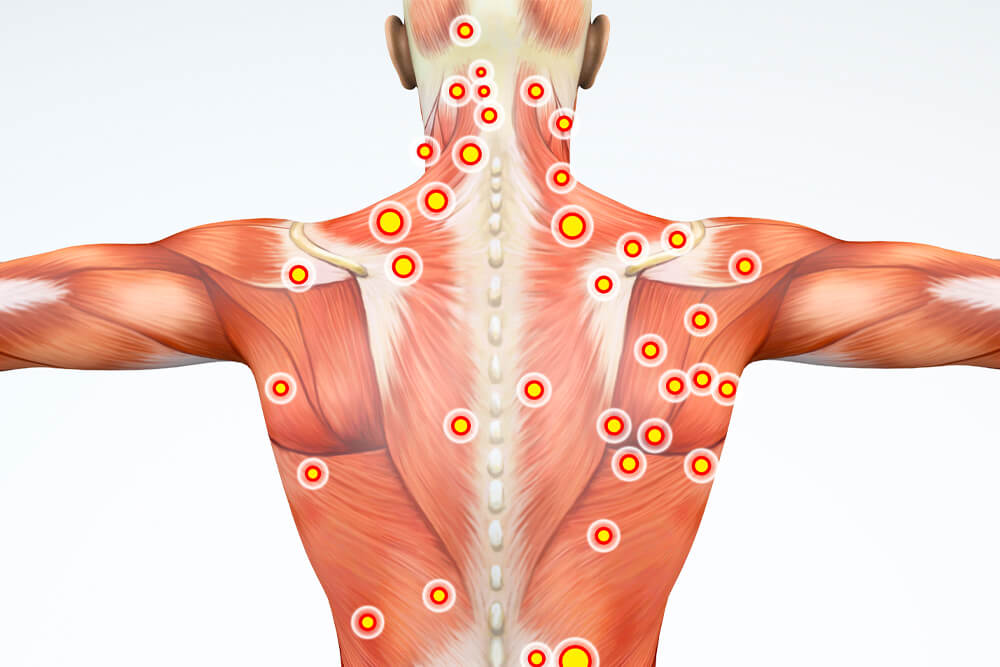illustrated image of a person's back showing muscle points
